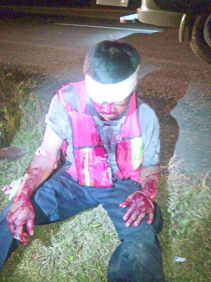 Casi se Mata Imprudente Motociclista