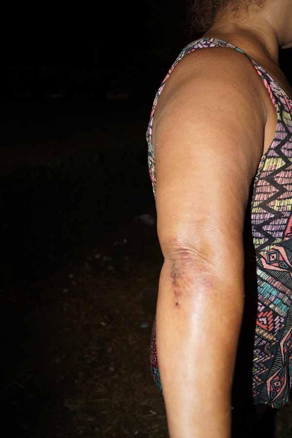Mujer fue Golpeada en la Colonia Rivera Maya