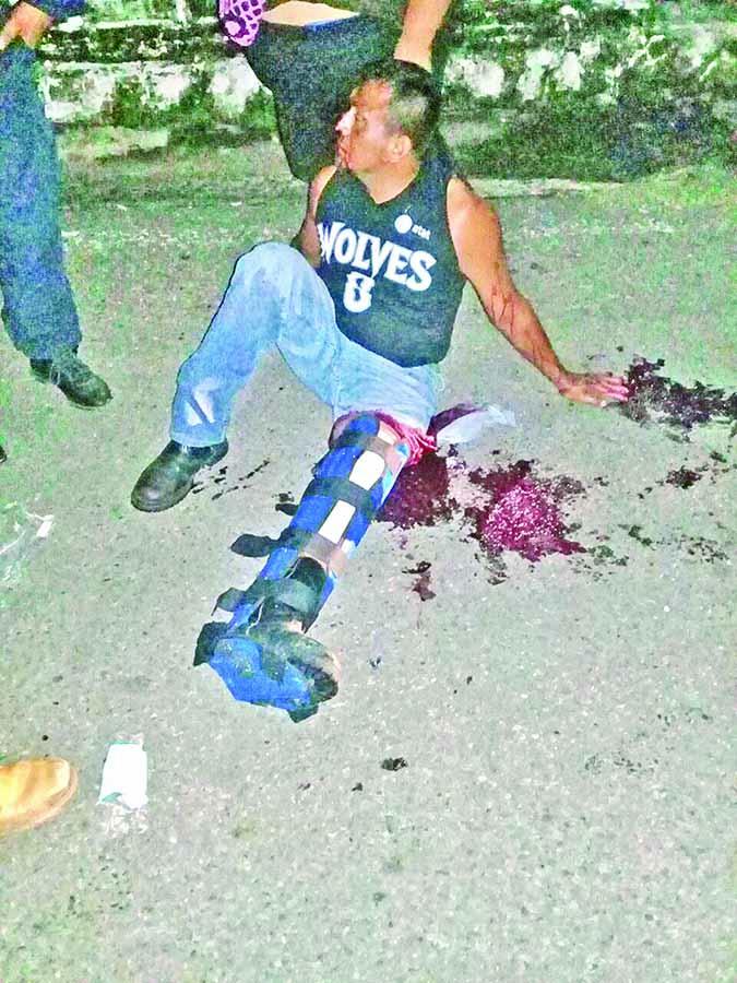 Motociclista fue Arrollado por Vehículo Desconocido