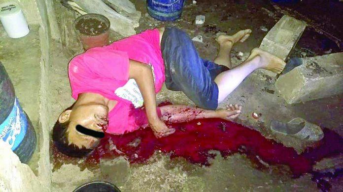 Muere de un Certero Balazo en la Cabeza