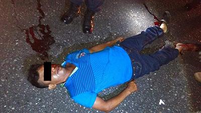 Murió Atropellado en la Carretera Costera