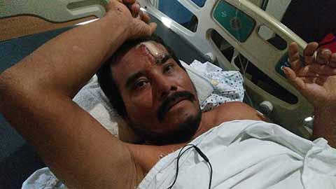 Campesino Denuncia Irregularidades en Caso de Accidente Vehicular